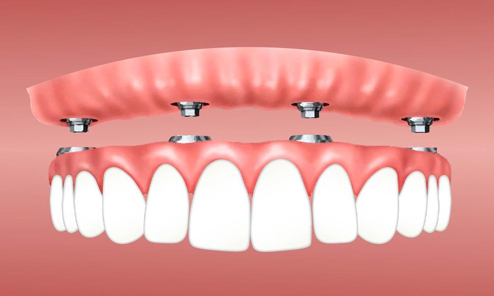 Tipos de implantes dentales y sus cuidados