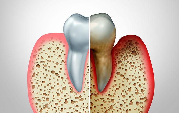 Periodoncia - Tratamiento periodontitis