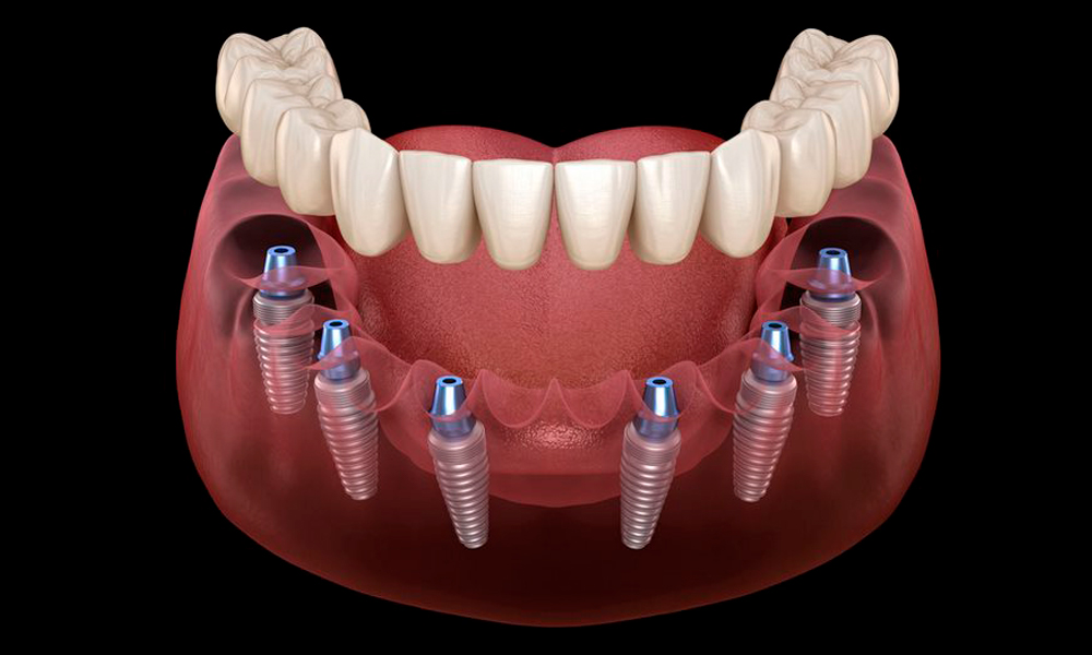 Implantes dentales All on 4 y All on 6