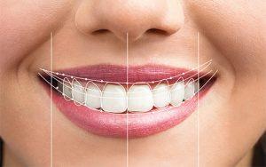 Tratamientos DSD - Diseño Sonrisa Digital