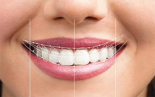 DSD tratamientos de sonrisa digital