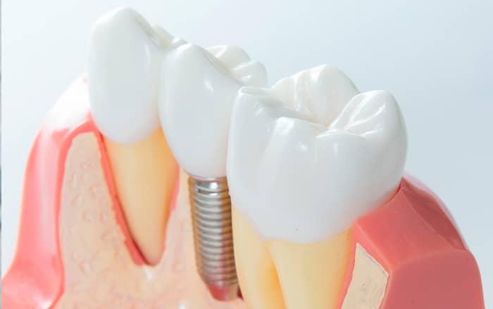 Implante tornillo titanio