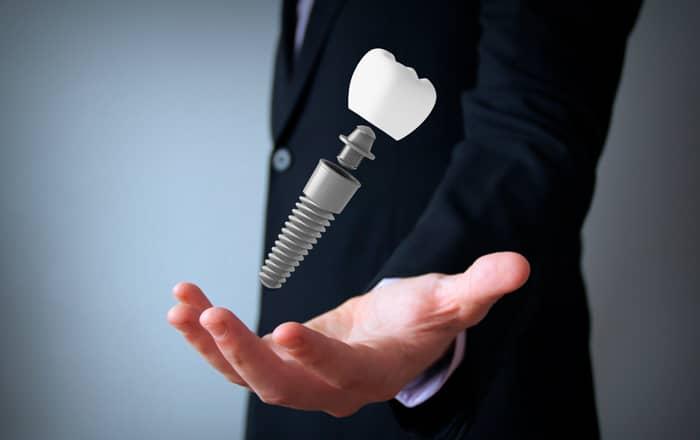 implante dental tornillo y corona