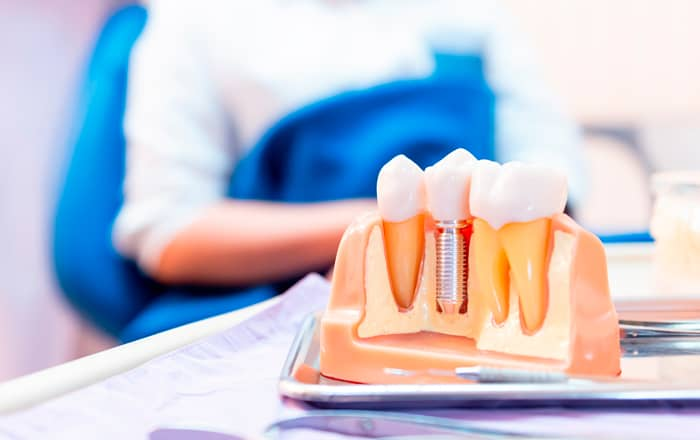 Osteointegración implante dental